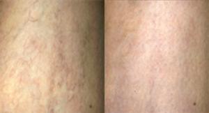 Traitement laser des varicosités